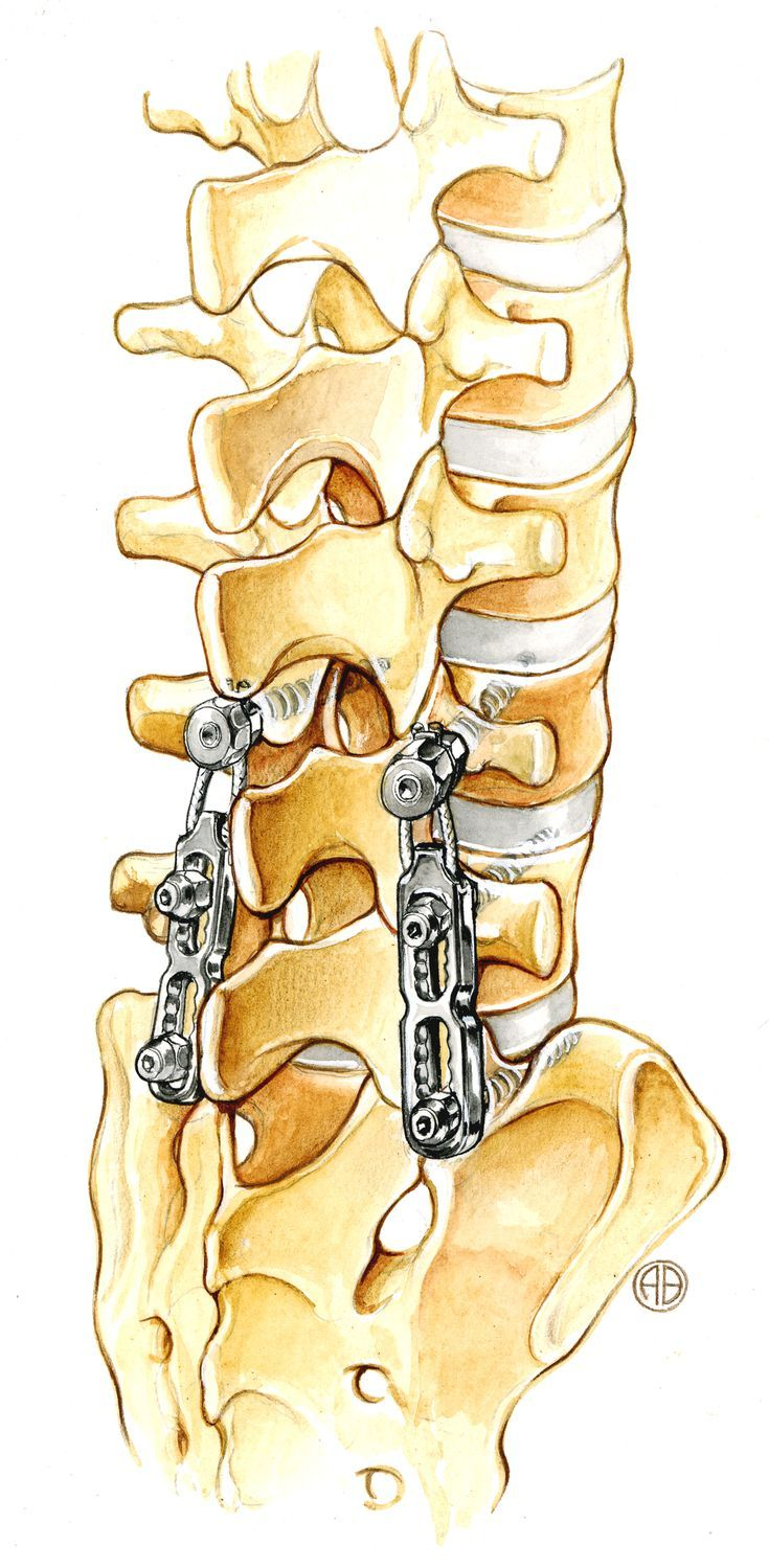 Surgery for Cervical Radiculopathy: Anterior Cervical Discectomy with and without Fusion