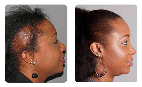 hair loss in women restoration results bosley transplant before after patient pictures woman and - Bosley Review
