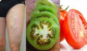 Increíble! Con la ayuda de un tomate podras curar las venas varicosas