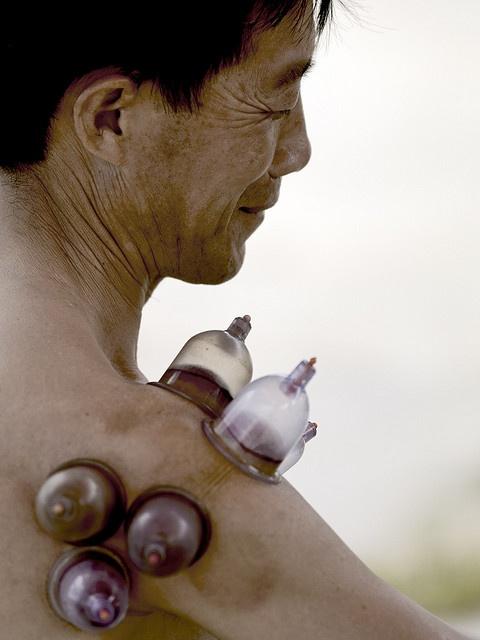 China, traditional medicine