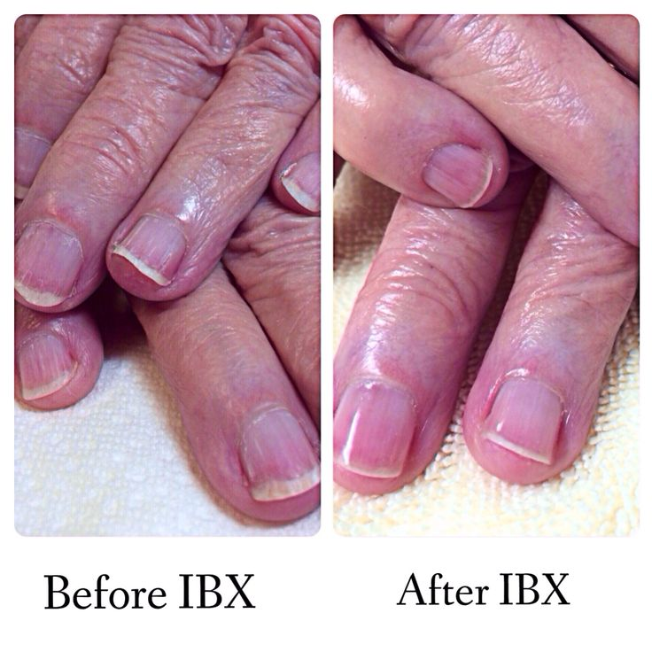 First client that I used IBX on, you can see changes after ...