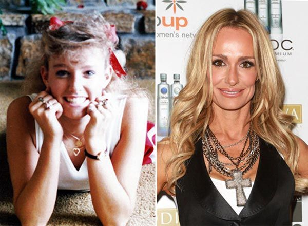 Taylor Armstrong Plastic Surgery Before & After - http://www.plasticsurgerytalks.com/taylor-armstrong-plastic-surgery-before-after/
