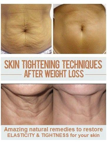 10 Ways To Get Rid Of Sagging Skin After Weight Loss Saggy