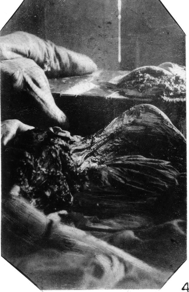 Mary Jane Kelly- thought to be the fifth and final victim of the murderer known as Jack the Ripper. This photo was taken at the crime scene, her home in Millers Court, near Commercial St in East London.