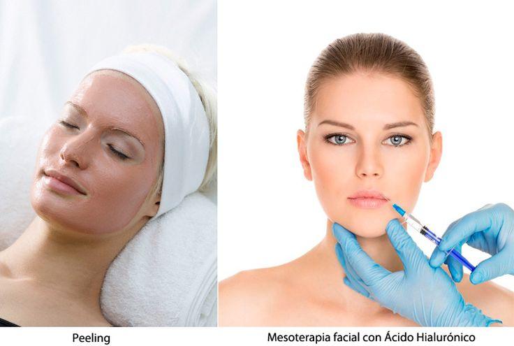 Peeling y mesoterapia facial