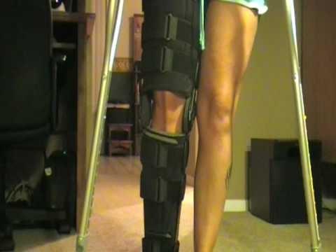 Broken Knee Cap The Injury Pinterest Watches Knee