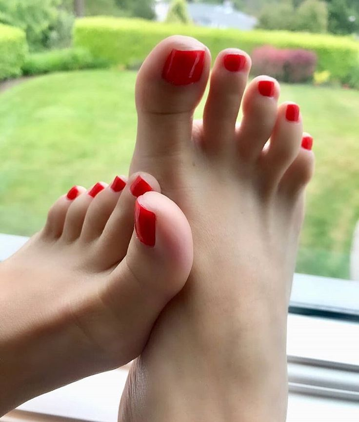 Woman loses toes 3