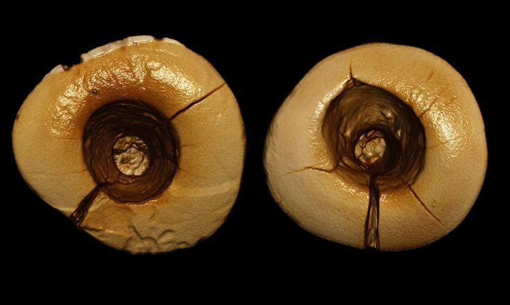 Earliest dental fillings discovered in 13,000-year-old skeleton