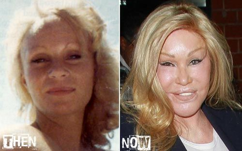 "Cat Lady ""Jocelyn Wildenstein"" is another victim of plastic surgery"