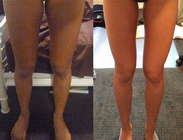 Discover how to get skinny legs! I know that many personal trainers are against cardio, but if you want lean legs, cardio will be very important.