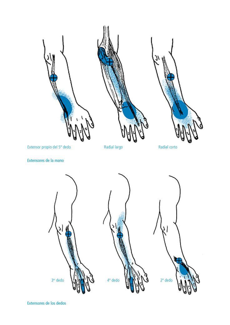 Esquemas de los Puntos Gatillo y sus zonas de dolor referido | Curso dolor miofascialCurso dolor miofascial