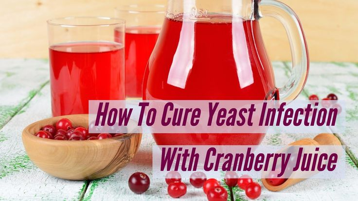 4 Foods to Avoid If You Suffer from Recurring Yeast Infections