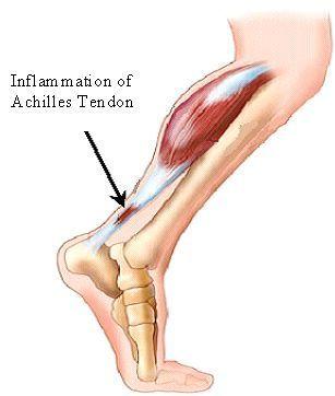 Achillies Tendinopathy