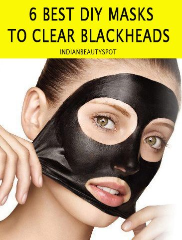 6 best homemade natural DIY masks to clear blackheads