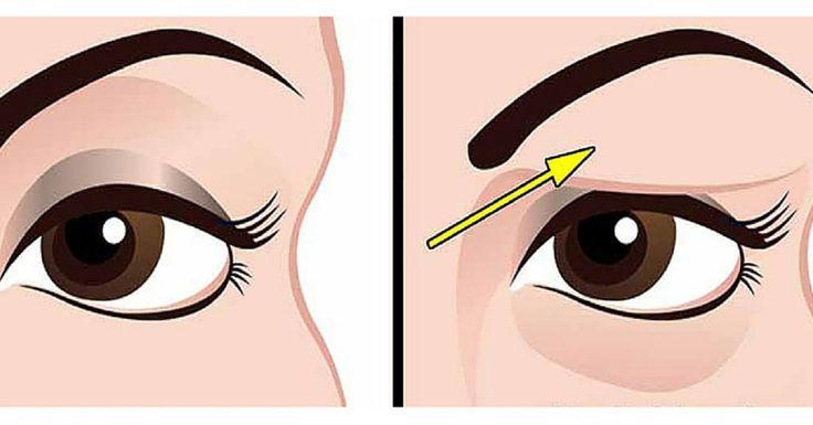 Http Www Eyelidslift Com Blog  Natural Remedies For Drooping Eyelids