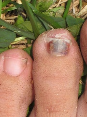 Nasty Picture, but helpful information.  Advice to runners: How to [try &] keep your toenails. (- The Peaceful Runner)