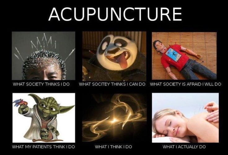 An overview of the acupuncture as an alternative medicine