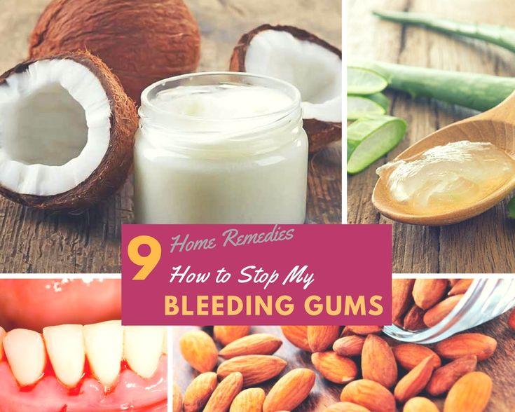 Home Remedies to Stop Bleeding Gums & Gingivitis { 9