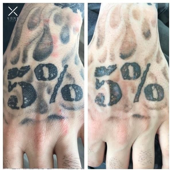 His Is A Before And After Of A Clients First Session Completely Healed You Can Already See The Difference Laser Tattoo Removal Laser Tattoo Tattoo Removal