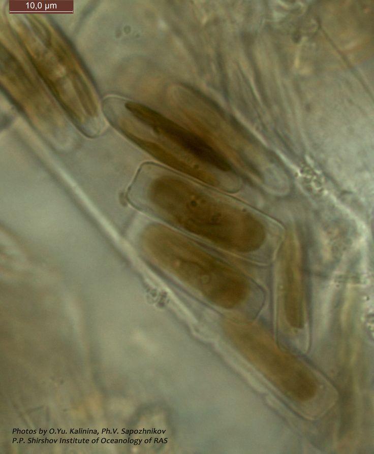 Клетки живых диатомей из рода Parlibellus - строителей своеобразных по своей экологии трубчатых колоний: клетки в таких колониях располагаются внутри полисахаридных трубок. Сами трубки, словно тонкие волосы, растут на поверхности плавучих предметов, скал мелководной зоны Моря или же на макрофитных водорослях.