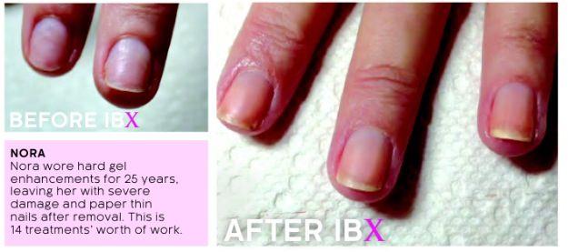 IBX Example