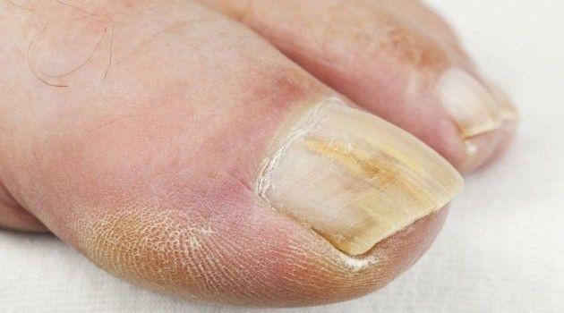 Грибок ногтей микоз заразен