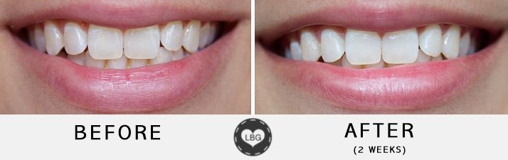 BlanX Advanced Whitening Toothpaste (Before & After) + GIVEAWAY! – Le Beauty Girl