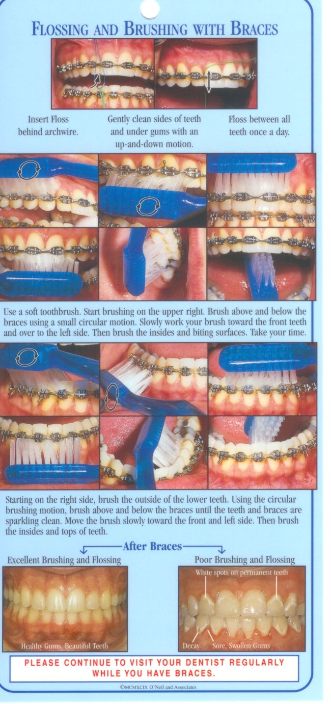 Braces tips. Please continue to visit your dentist if you have braces.