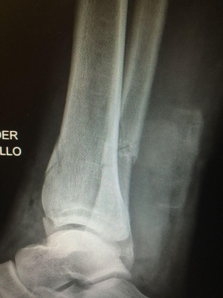 Vista lateral de fractura de tobillo y tibia distal