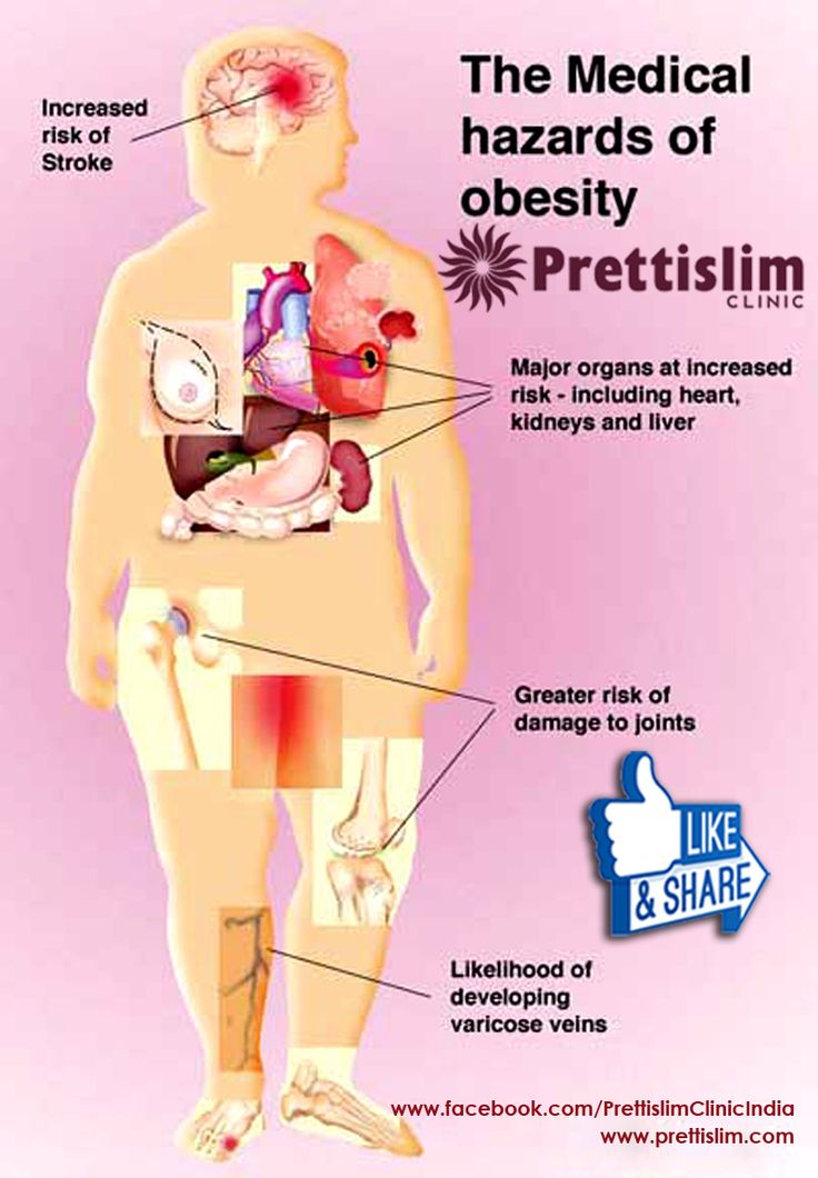 The #Medical Hazards of #Obesity by #Prettislim Clinic