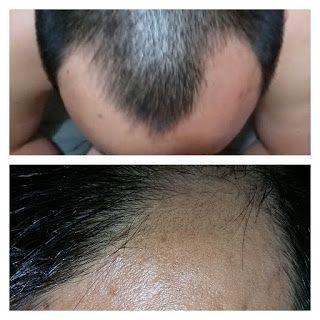 Vitamin KEISKEI Keiskei Hair Nourish Vitamin merupakan bagian dari produk penumbuh rambut keiskei yang di proses dengan tecnologi tradisional jepang yang menggabungkan extract Ashitaba dengan beberapa tanaman herbal lainnya seperti extract Virgin Coconut Oil, Pandanus extract dan Olive Oil. Dengan perpaduan bahan-bahan tersebut sehingga menghasilkan formulasi yang berfungsi ganda untuk menangani permasalahan rambut seperti kerontokan rambut, uban, rambut rusak , rambut bercabang dan rambut…