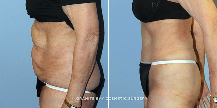#Plastic #Surgery #tuck #tummy See what a tu…