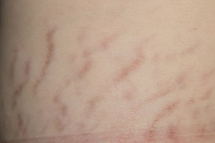 how to get rid of clear stretch marks