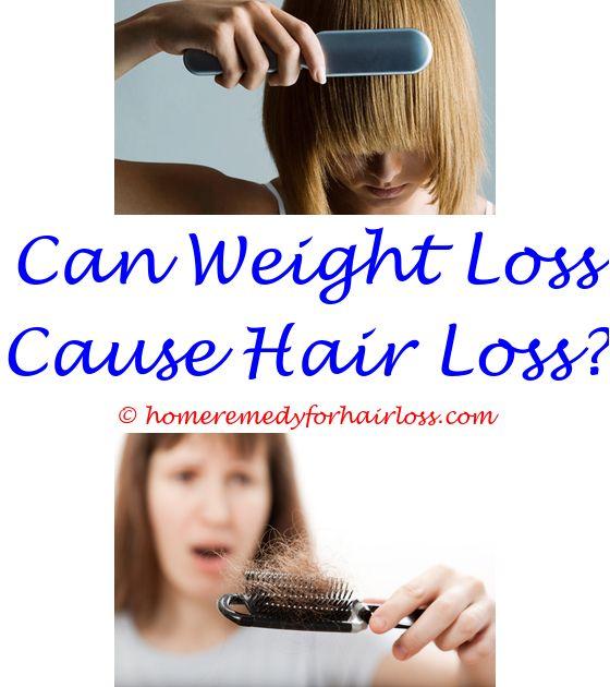11 best Seborrheic Dermais Hair Loss images on Pinterest