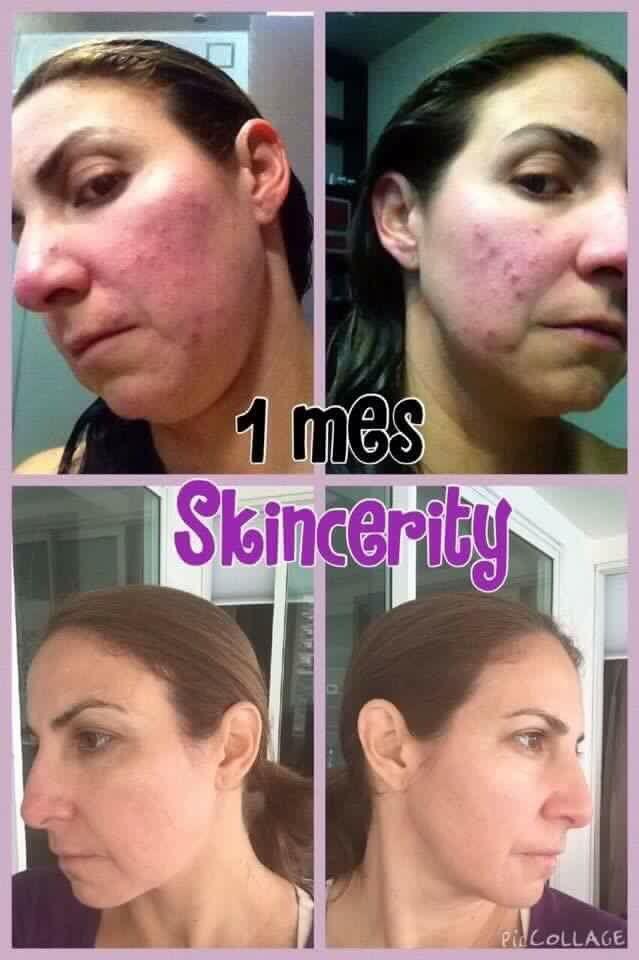 Skincerity