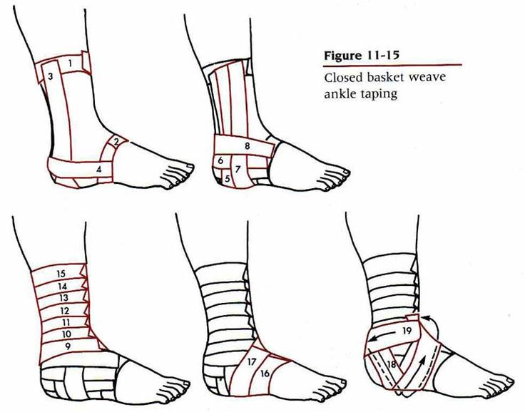 ankle taping - Google Search