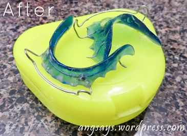 How to Clean Retainers | Angela Says