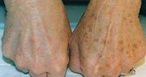 Eliminate brown spots on hands?