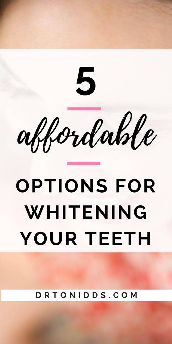 5 effective options for whitening your teeth | Home whitening teeth system | whitening teeth | natural tooth whitening ideas | how to whiten teeth | white teeth | brighter white teeth | whitening teeth diy | whitening teeth | white teeth fast | white teeth make a smile more beautiful | whiter teeth #diyteethwhitening