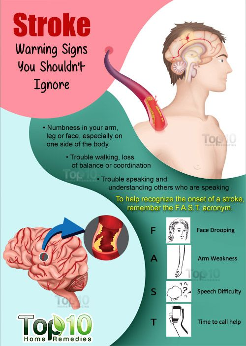 Stroke Warning Signs You Shouldn't Ignore !