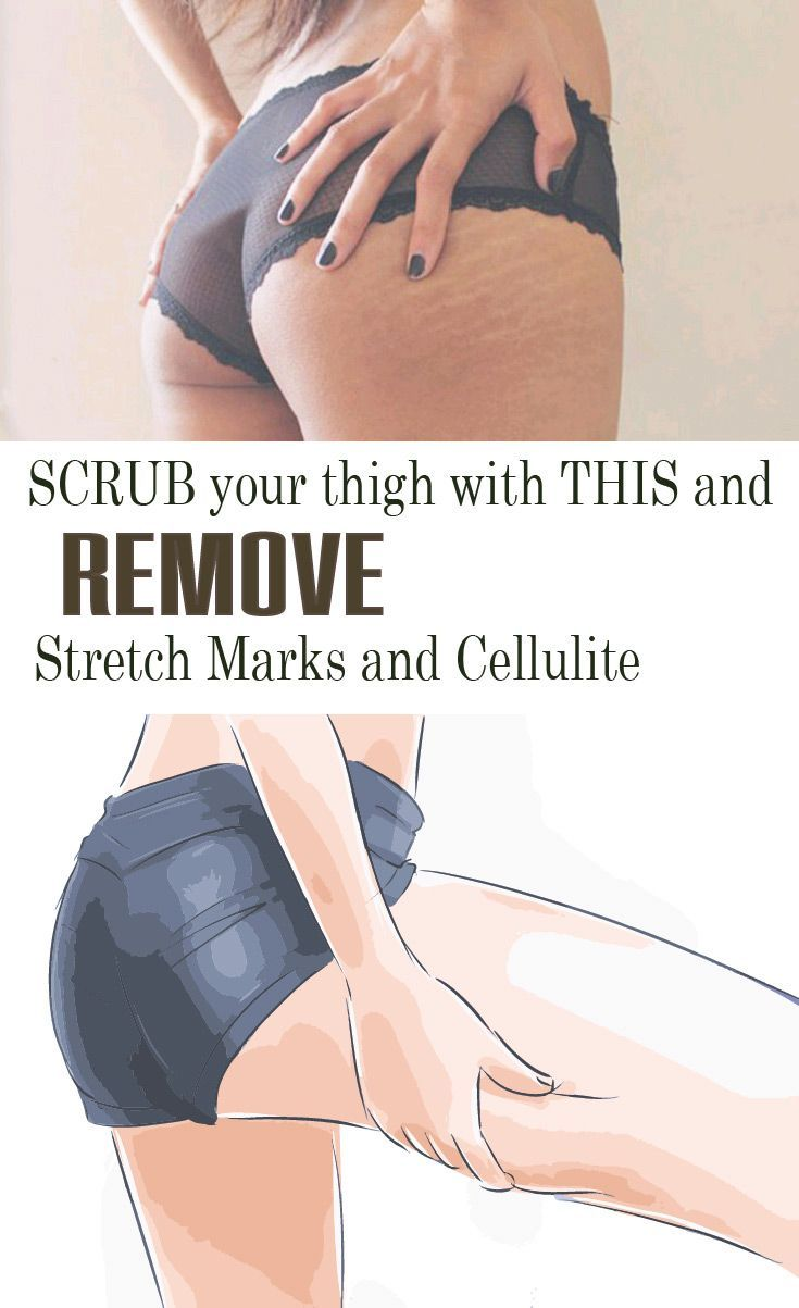 To remove cellulite and stretch marks from your skin, the use of a natural oil is a must. Here you have a recipe for a skin exfoliation homemade scrub.