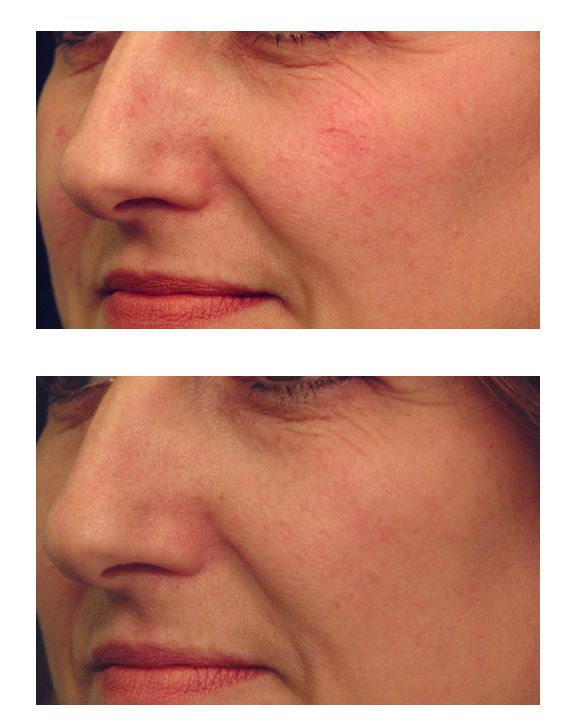 Laser vein treatment before after at blue water spa in for 510 salon ink raleigh nc