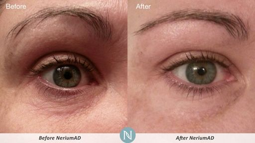 More Real Results with NeriumAD! What is Nerium Skin Care? ONE awesome product you use only at night. REAL Science, REAL Results! Age-defying treatment- fine lines wrinkles, skin texture, pores, aging and sun damaged skin-30day money back guarantee. www.KathleenJohns... www.facebook.com/... #skincare #anti-aging #beauty #aging