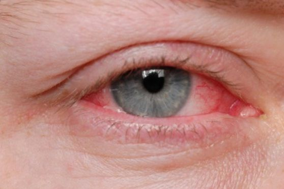 How to get rid of red eye