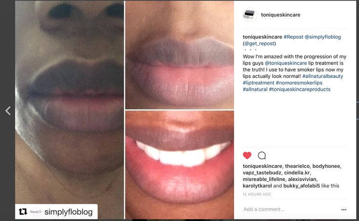 Try our advanced lip lightening formula https://www.toniqueskincare.com/collections/skin-whitening/products/advanced-lip-lightening-formula for lightening dark smoker's lips, or to lighten naturally darker lips! #Skinwhiteningproducts