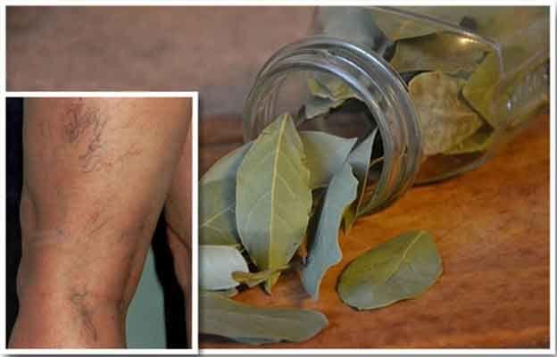 Dafinul este o mirodenie foarte apreciată în multe dintre bucătăriile lumii, dar puţini ştiu că este şi o plantă medicinală foarte utilă.  Principalele proprietăţi terapeutice ale dafinului:   – Întăreşte imunitatea  – Detoxifiază colonul  – Are efect calmant pentru sistemul nervos  – Stimulează excreţia toxinelor prin glandele sudoripare  – …