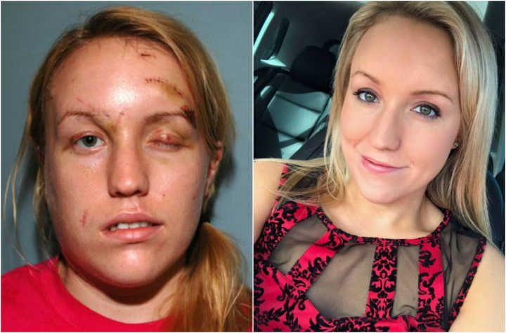 Mulher vítima de violência se casará com bombeiro que a salvou