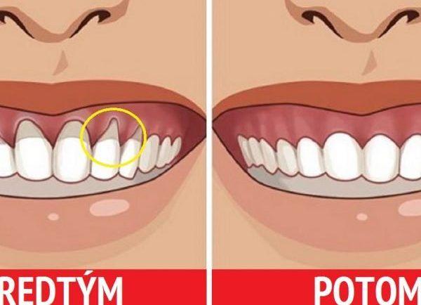 Mala som problém s odhalenými krčkami zubov, veľké bolesti a zubár mi poradil niečo z prírodnej lekárne. Moje ďasná sú konečne zdravé a s bolesťami mám pokoj! | Báječné Ženy