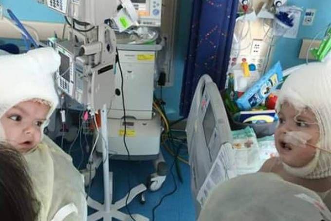 Após cirurgia, gêmeos siameses se olham pela primeira vez
