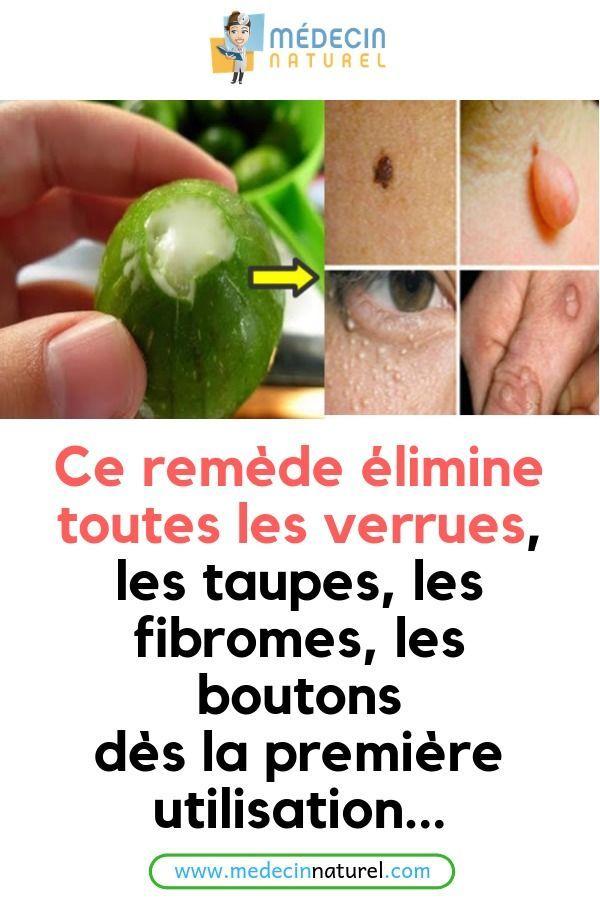 Remede De Grand Mere Pour Les Taupe : remede, grand, taupe, Remèdes, Naturels, Contre, Maladies
